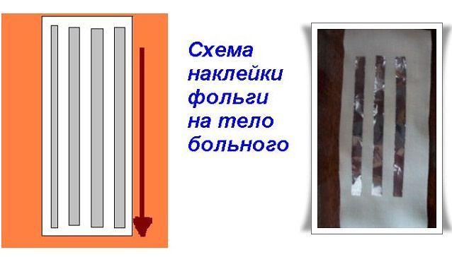 Лечение при помощи алюминиевой фольги. Обсуждение на LiveInternet - Российский Сервис Онлайн-Дневников
