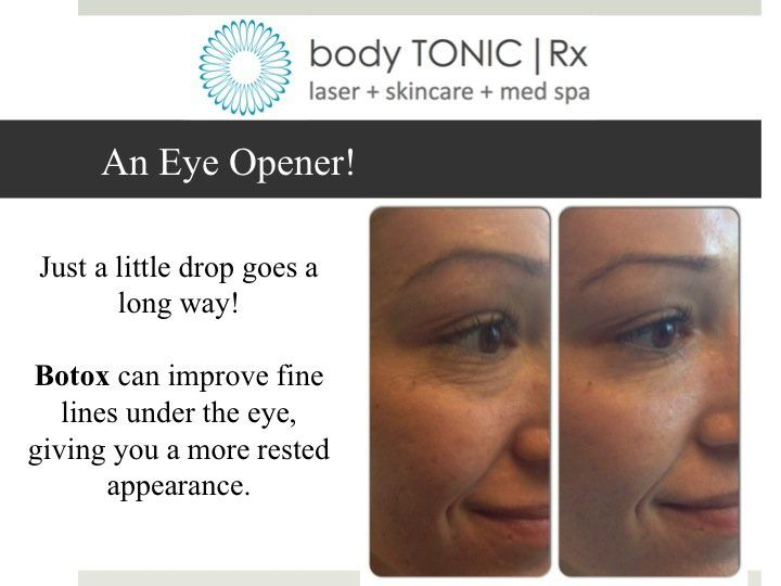 A drop of Botox under the eye softens fine lines and gives a rested appearance. Treatment by Gina Jones