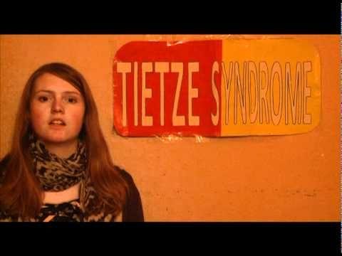 Tietze Syndrome Symptoms | HRFnd