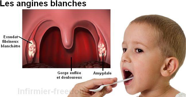 Qu'est-ce que c'est ? L'angine blanche est une inflammation des amygdales, elle est généralement d'origine virale (80% des cas) ou d'origine bactérienne (20% des cas). Cette infection est fréquente chez les enfants mais peut apparaître aussi chez les adultes, elle fait apparaître une substance blanchâtre sur les amygdales gonflées et rouge. L'angine blanche est une …