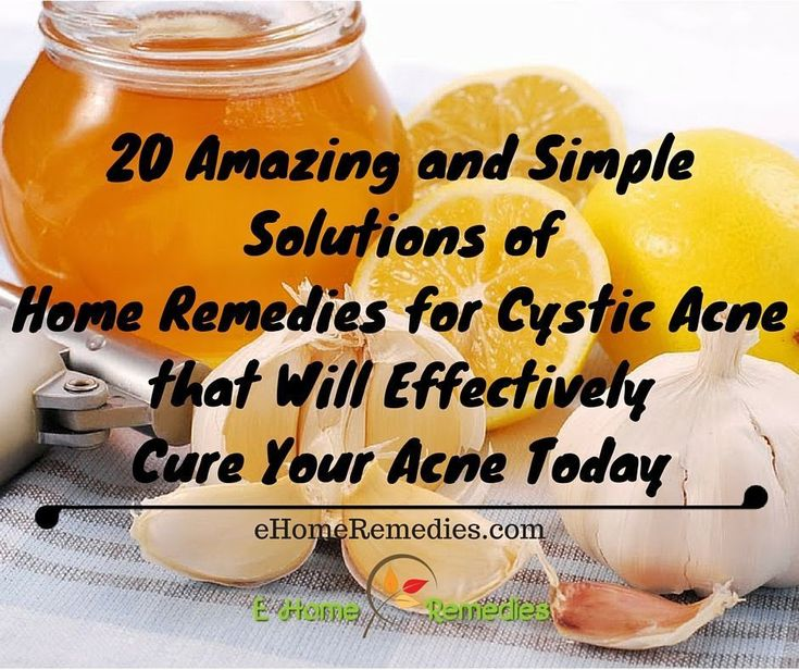 20 Amazing and Simple Solutions of Home Remedies f…