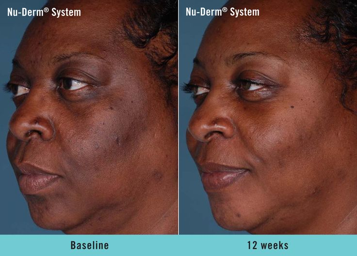 Obagi Nu-Derm® Systems beautifully transform your skin to ...