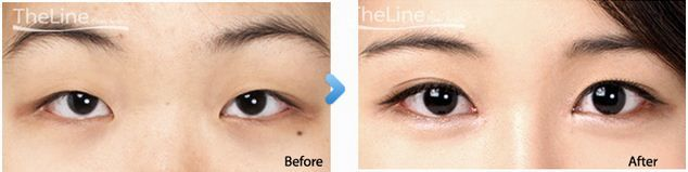 Partial eyelid surgery is the combination of incision and non-incision double eyelid surgery. It eliminates the thick fat layer from above the eyes for more almond-shaped eyes. For special offers on Plastic surgery, please send your queries at info@thelineclinic.com