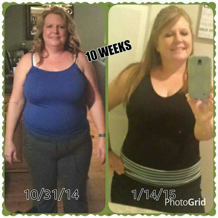 Rancho cucamonga medical center weight loss reviews image 6