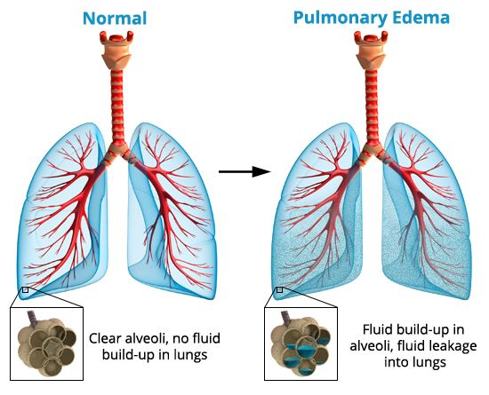 pulmonary edema - Google Search