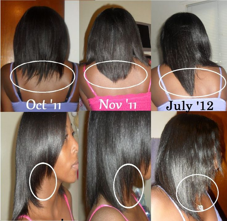 83 best Hairfinity results images on Pinterest | Grow hair