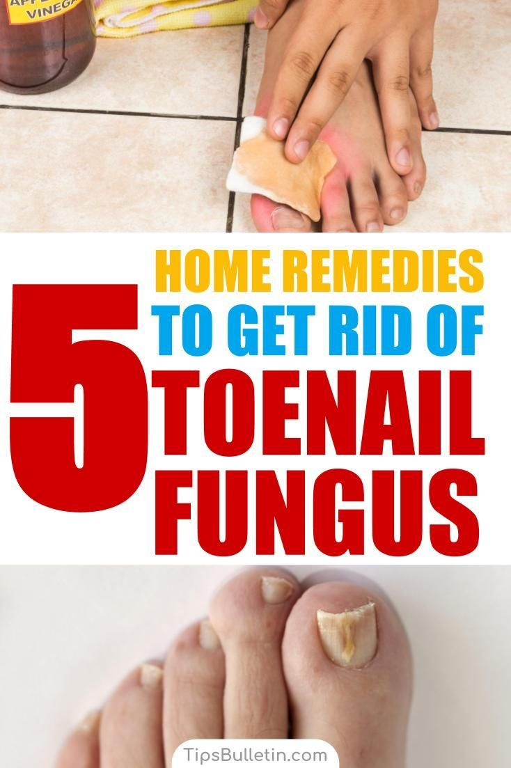 How To Get Rid of Toenail Fungus - 5 Home Remedies | Health and ...