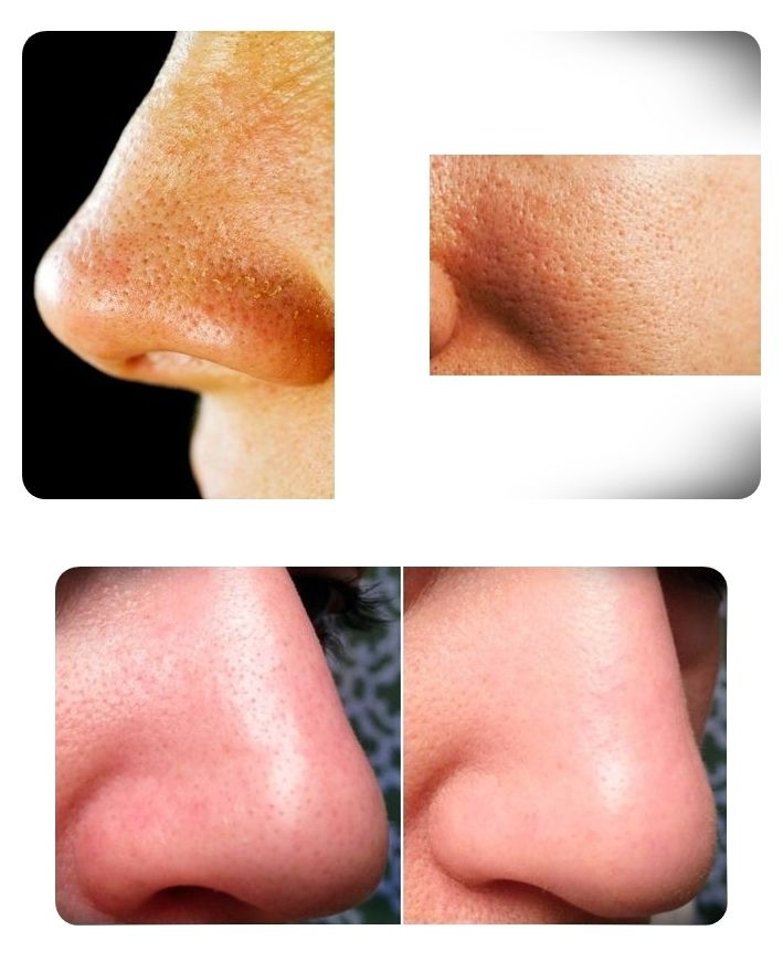 Large facial pores (orange peel skin) are ugly and unattractive, also a visible proof that the skin is unhealthy and not getting as much nutrition as it should be.Continue reading...