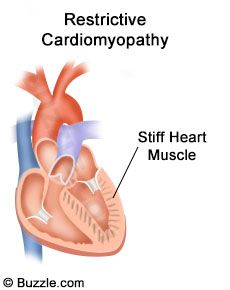 An enlarged heart is also referred to as cardiomegaly. This condition is a sign of an overworked heart. This article gives information regarding the possible causes, symptoms, and the treatment options that can help one control the adverse effects of an enlarged heart.