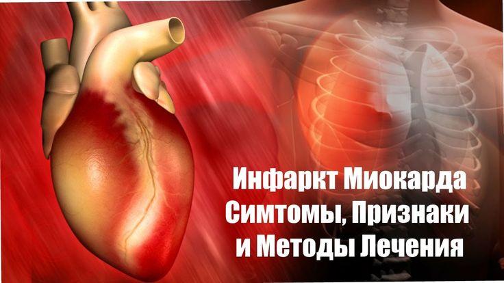 Инфаркт Миокарда. Симтомы, Признаки и Методы Лечения