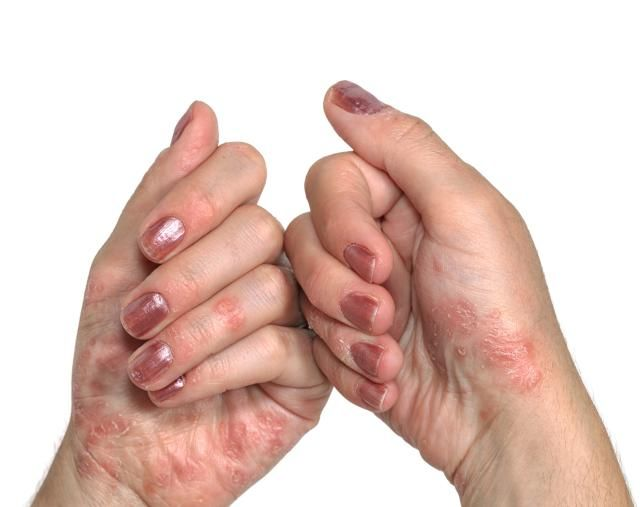 As its name suggests, psoriatic arthritis is associated with psoriasis and arthritis 1