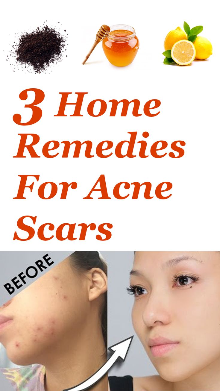 Folk remedy for acne at home 85
