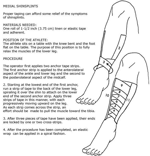 146 best how to deal with shin splints images on pinterest, Human Body