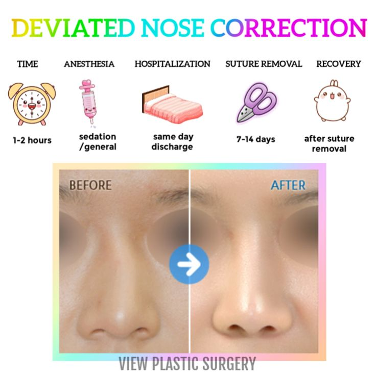 Deviated nose surgery view plastic surgery clinic with