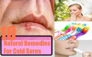 10 Natural Remedies for Cold Sores