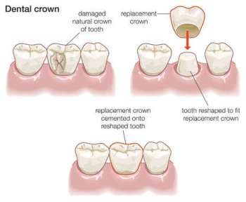 Dental Cavities Treatment