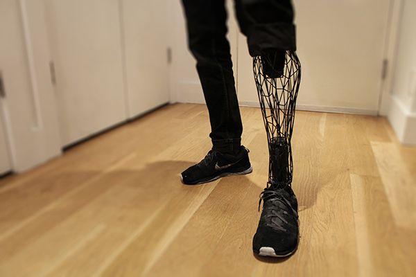 3ders.org - 3D printed Exo-Prosthetic leg balances aesthetics with affordability | 3D Printer News & 3D Printing News