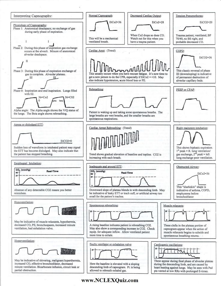 Capnography Cheat Sheet                                                                                                                                                                                 More