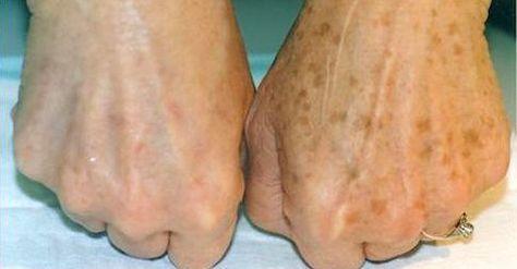 Ouderdomsvlekken of levervlekken zijn egale, bruine of zwarte vlakken die voorkomen op de handen, schouders, gezicht en andere delen van het lichaam die aan de zon worden blootgesteld. Hoewel deze