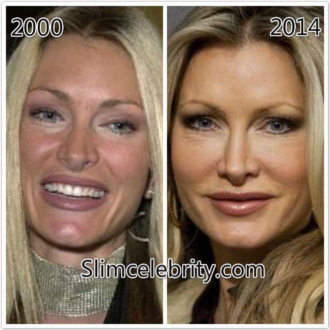 Liposuction : Makemeheal.com Celebrity Plastic Surgery ...