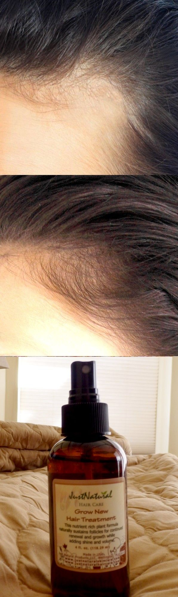 All I can say is thank you! I was in an accident almost 6 months ago and was told a patch on my head would never grow hair. I was mortified that I would have a bald patch. After two months of using this grow new hair treatment I have tiny hair growing where doctors said I never would! I can't wait for my next appointment so I can have them add this product for other patients. I wish I would have known about this product sooner so I could have started the hair growth earlier.