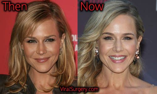Julie Benz Plastic Surgery. #juliebenz #botox #actress #beforeafter #plasticsurgery #beauty