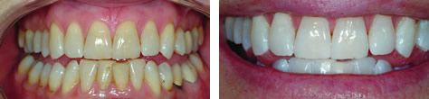ZOOM! #TeethWhitening Before and AFter