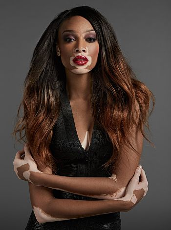 Chantelle Winnie: Redefining beauty as a a proud, beautiful woman with vitiligo