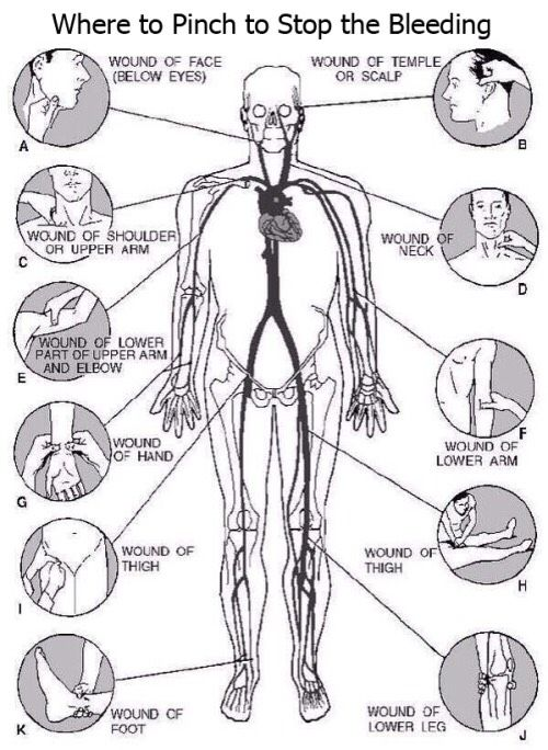 Where To Pinch To Stop The Bleeding THIS CAN SAVE SOMEONE'S LIFE!!#Health&Fitness#Trusper#Tip