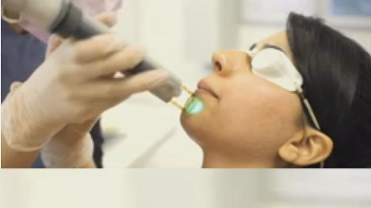 Transform Your Dark Skin With Laser Facial Hair Removal Treatment : Get best treatment to get rid of undesired hair on several body parts including the facial area at Oasis Medical Aesthetic clinic in Franklin, MA. More detail @ http://www.oasisaesthetic.com/transform-dark-skin-laser-facial-hair-removal-treatment/