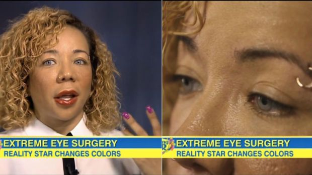 """Tameka """"Tiny"""" Harris surgically altered her brown eyes to blue. http://beautyeditor.ca/2014/11/10/lupita-nyongo-lancome"""