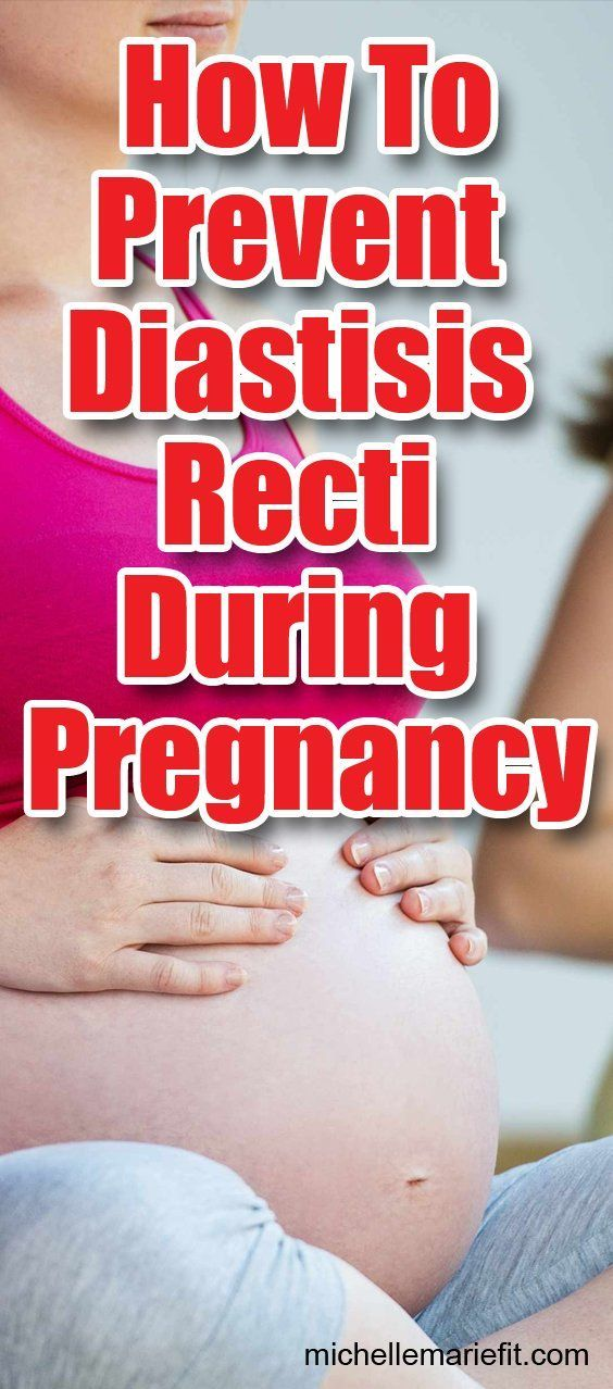 How to prevent diastisis recti during pregnancy.   – Pregnancy Tips
