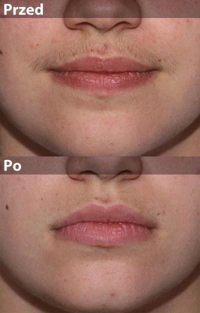 """Depilacja laserowa polega na podgrzaniu mieszka włosowego dzięki specjalnie skondensowanej wiązce światła, emitowanego przez laser. Wiązka ta jest dobrana w taki sposób, aby poprzez podgrzanie mieszka """"zepsuć"""" zarodek włosa, nie uszkadzając przy tym okolicznych tkanek. W wyniku takiego działania sam mieszek zostaje uszkodzony i przestaje produkować włosy.  Cała procedura trwałego usuwania włosów podczas zabiegu w salonie Laser DeLux jest bezpieczna, komfortowa i praktycznie bezbolesna."""