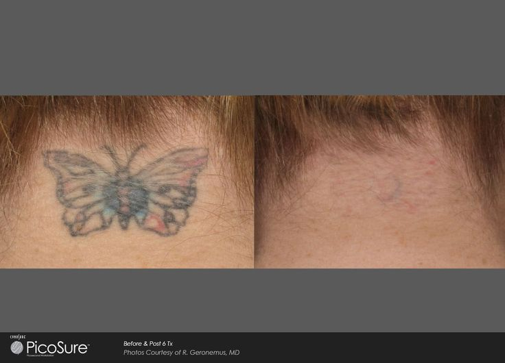 PicoSure Tattoo Removal #tattooremovalpicosure #removetattoos
