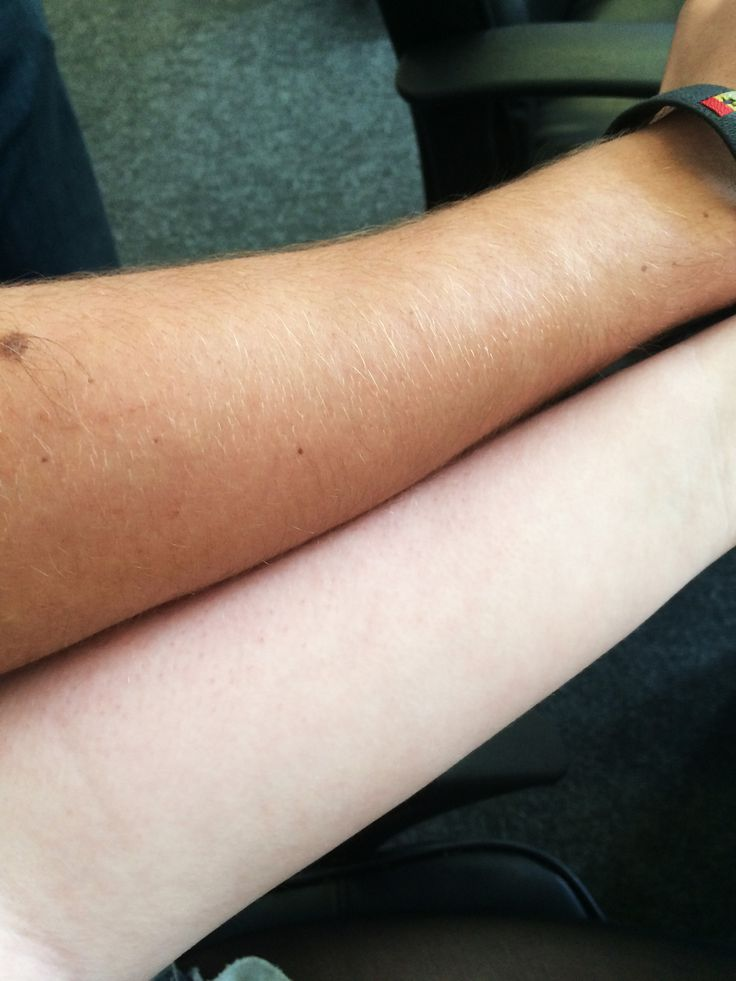 37 Problems Only Pale People Will Understand | The Casper jokes are getting old, guys.