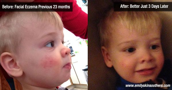 """My 23 month old son had facial eczema from birth. It would be red,bumpy, and itchy. We used all sorts of creams, cut his nails, saw many doctors, found out food allergies but it still persisted. I used the Emily's diaper soother on his cheek for three days and now besides a few previous scratches his eczema is barely noticeable. I apply it two to three times when at times I was applying other lotion 10-15 times a day. I'm impressed! ""  – Jessica S."