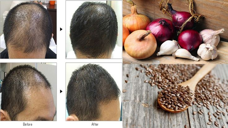 Natural home Remedies for Hair loss that are Simple and Effective
