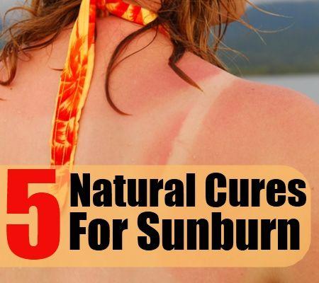 5 Natural Cures For Sunburn