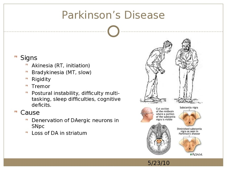 the features of parkinsons disease The clinical picture of pd is typical in many instances however, features  distinguishing it from other disorders should be thoroughly sought monogenic  forms of.