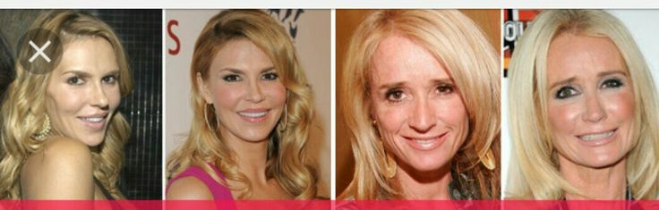 Brandi and Kim before and after