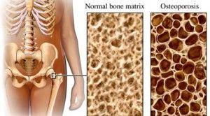 Η Οστεοπόρωση στο άτομο με Κάκωση Νωτιαίου Μυελού | Περιοδικό Αυτονομία - Disabled.GR