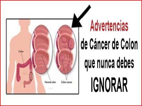 Salud al Día: 10 señales de advertencia de cáncer de colon que n...