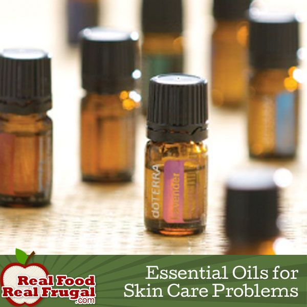 1000 Images About Doterra Essential Oils On Pinterest