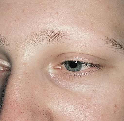Eyebrow hair loss.. treatment | Eyebrow hair loss, Eyebrow ...