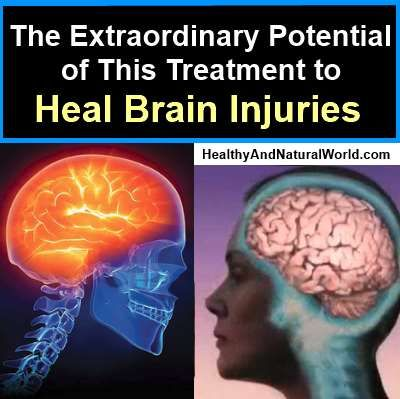 The Extraordinary Potential of This Treatment to Heal Brain Injuries