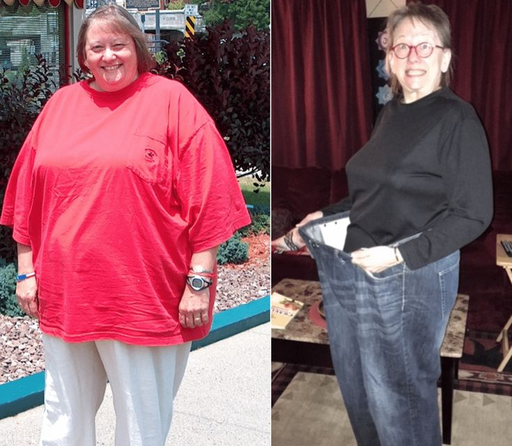 Judi had to buy clothes from big and tall stores. She had trouble walking up and down stairs and fitting in chairs. She needed a breathing machine to sleep and was on several diabetes medications –and she felt judged by people. Life was not good.