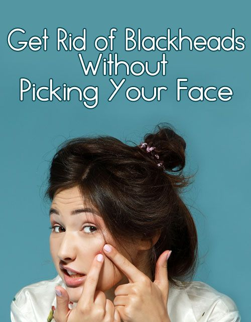 Pore strips are so '90s. Here's the scoop on how to get rid of blackheads without using your bare hands.