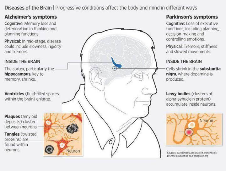 Alzheimer's & Parkinson's