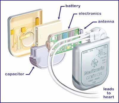 Internal Defibrillator / Cardioverter