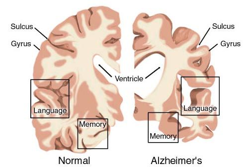 Alzheimer's Disease is one of the worst diseases you can get in your old age. It makes you forget everyone and everything about your life. It cannot be cured but there some things that can be down to slow down the process.